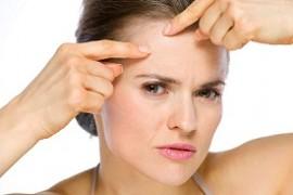 acne-bij-volwassenen