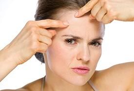 Oorzaken acne op latere leeftijd