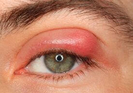 Tips bij een ontstoken oog