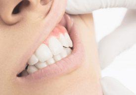 Gevaar van een tandvleesontsteking vaak onderschat
