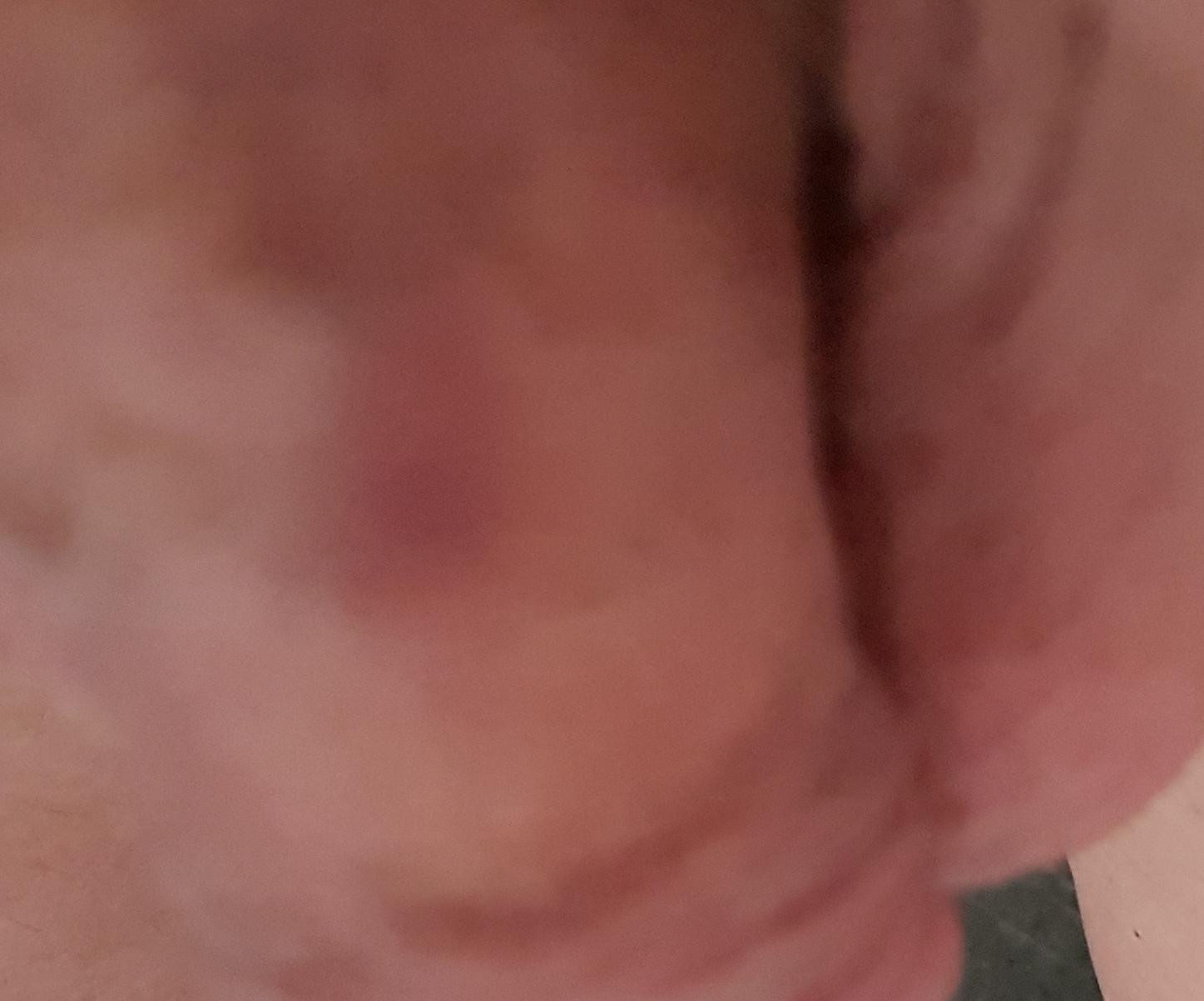 Zwarte lesbische voet fetish Porn